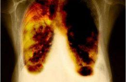 καρκίνος αμίαντος